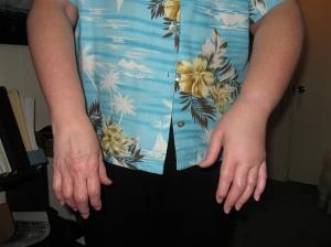 Swollen Arm